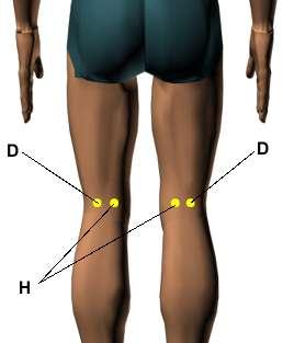 Iosteam p gina 2 acumapa for Exterior knee pain
