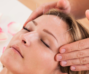 acupuncture-for-chronic-headaches