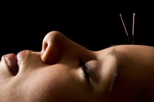 acupuncture-headache-011813-300x199