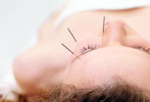 getty_rf_photo_of_acupuncture
